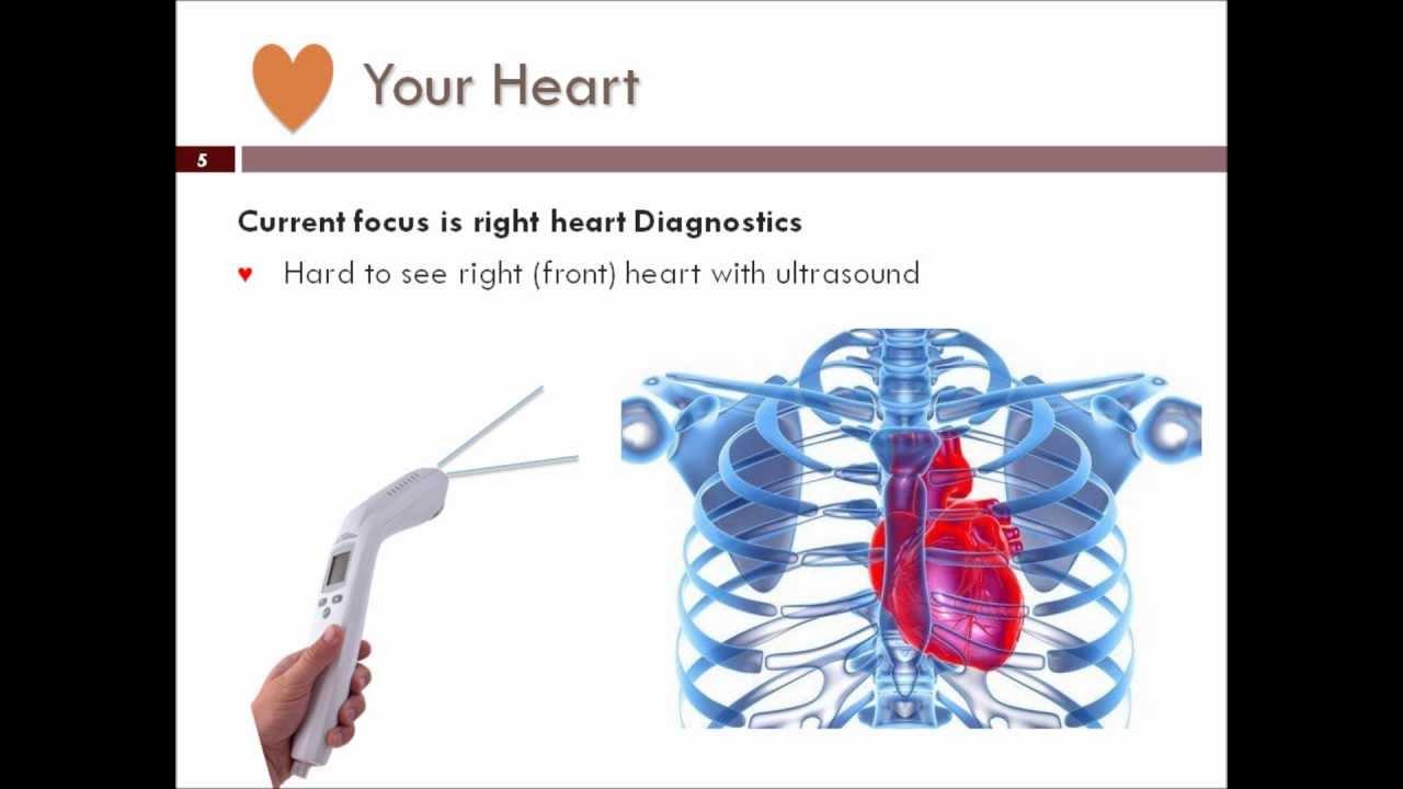 VentriPoint Diagnostics Ltd.